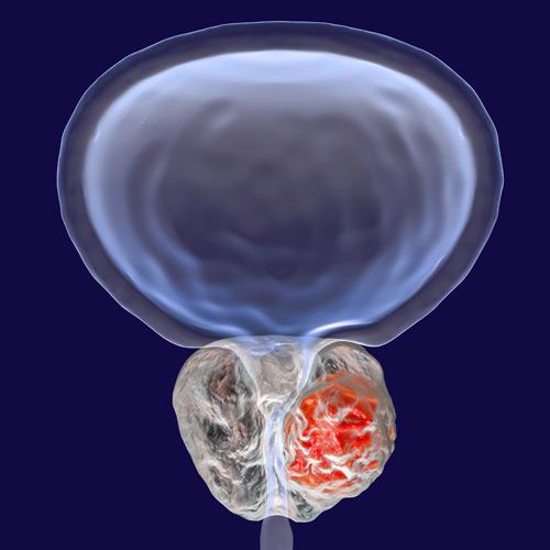 cáncer de próstata ROC Urología