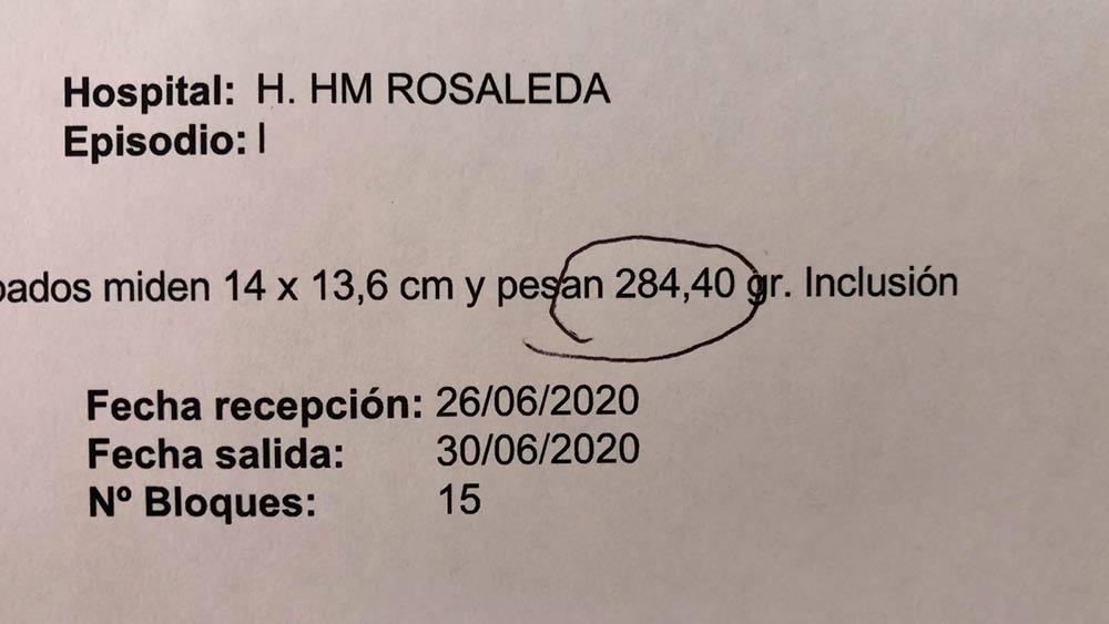 Láser Holmium para casos complejos de Hiperplasia Benigna de próstata