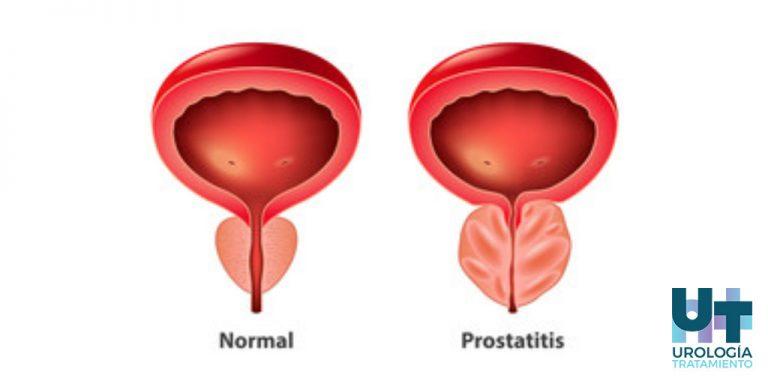 sintomas-prostatitis