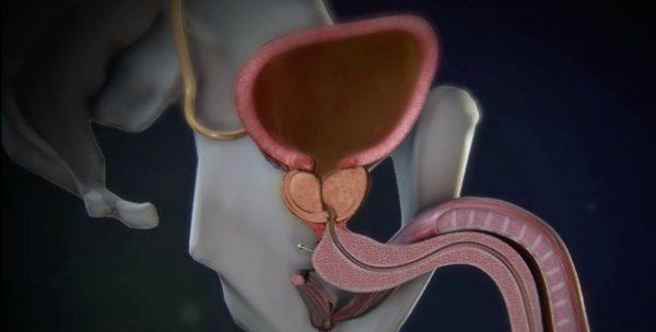 hiperplasia benigna próstata