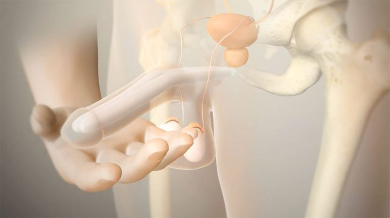 prótesis de pene maleable