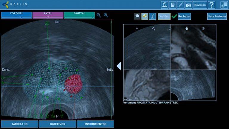 prostatectomía radical robótica
